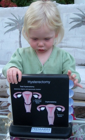 Birth Control - Hydterectomy