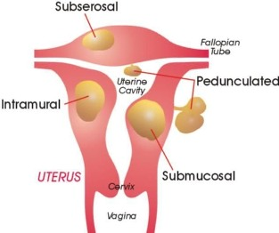 Fibroids and Weight Gain