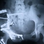 Animal Foods and Hip Fractures
