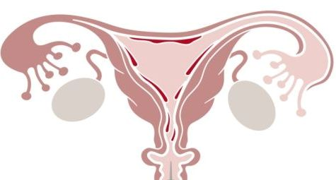 Irregular Menstrual Bleeding