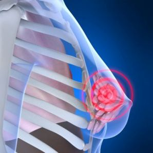 Stage 2 Breast Cancer
