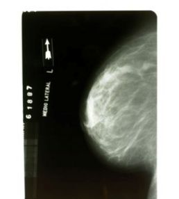 Breast Calcifications and Cancer