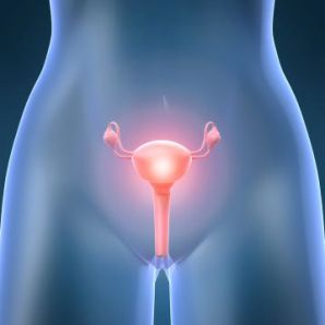 Ovarian Cancer Stage 3