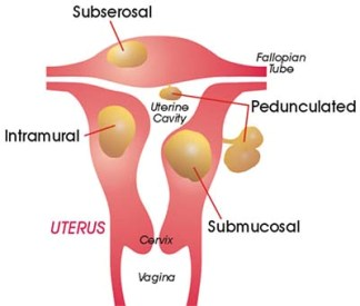 Uterine Fibroid Symptoms