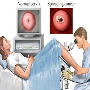 Colposcopy Procedure