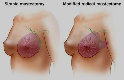 Modified-Radical-Mastectomy