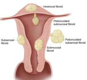 Enlarged-Fibroid-Uterus