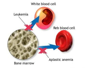 Common Causes of Aplastic Anemia