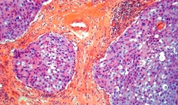 Symptoms of Invasive Ductal Carcinoma