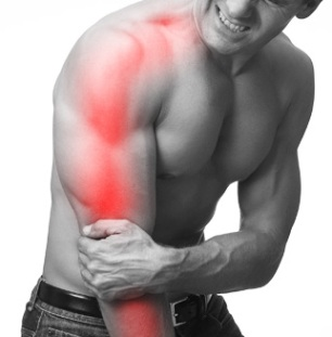 Treatment for cervical radiculopathy