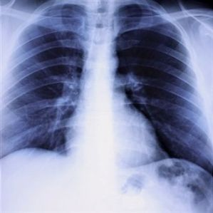 lung-disorders-and-diseases