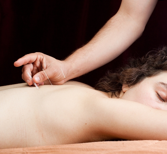 acupuncture in back pain