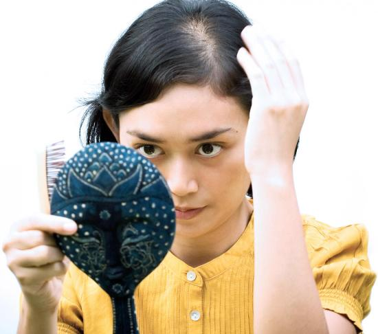 causes of bald spots among women