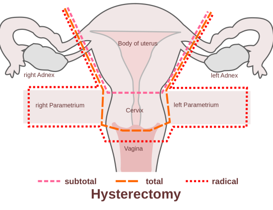 combining hysterectomy With tummy tuck