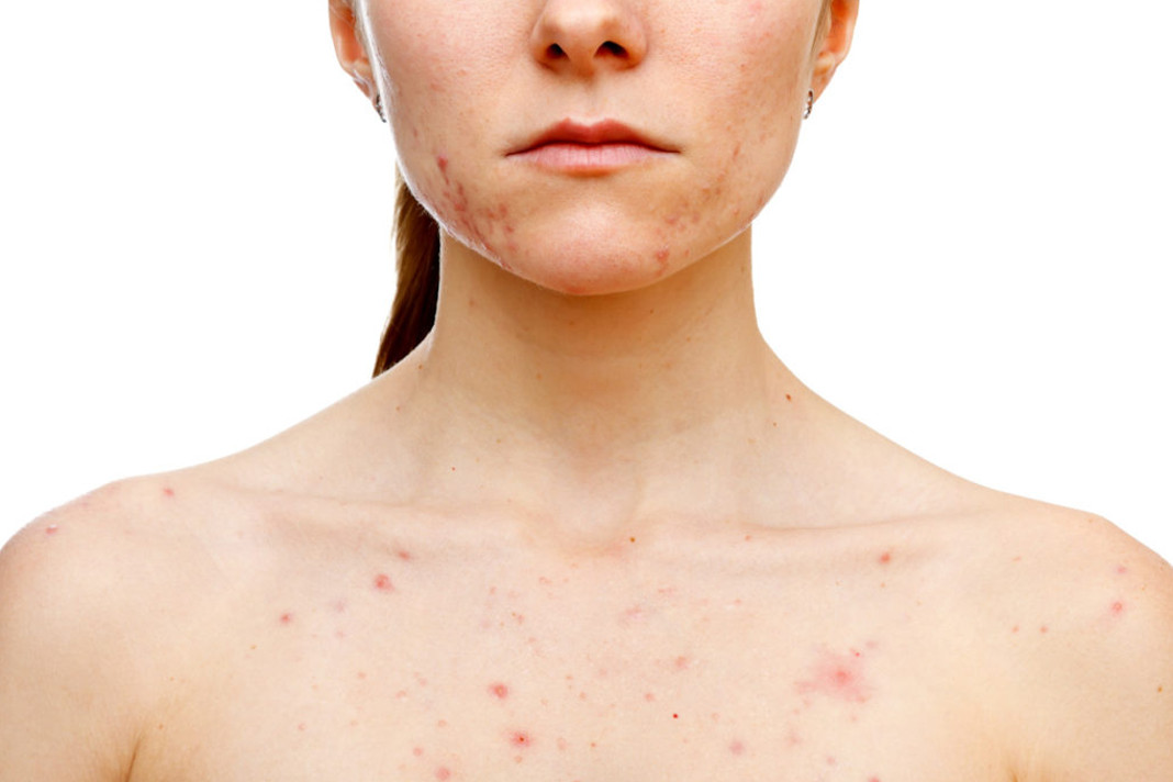 Diet Tips to Prevent Hormonal Acne