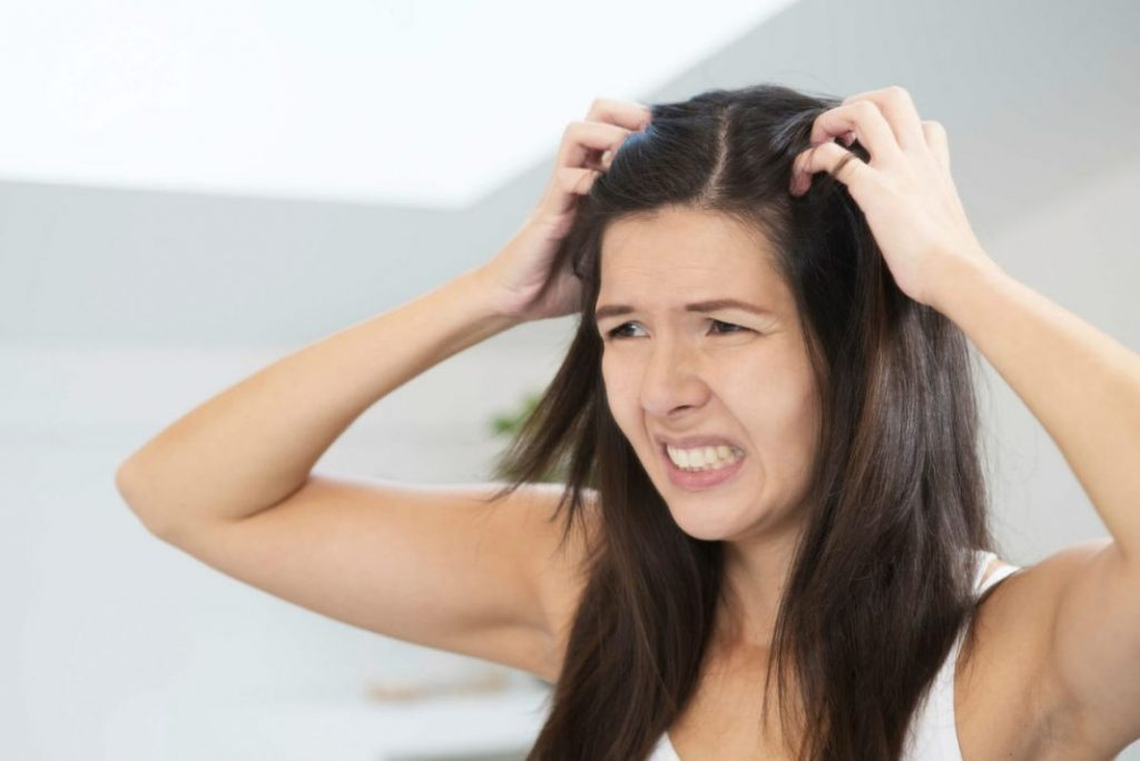Simple Tips to Get Rid of Dry, Flaky Scalp